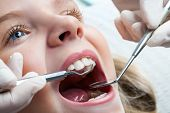 Young Girl At Dentist.