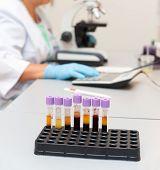 Blood Examination