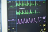 Electrocardiograph In Hospital Surgery poster