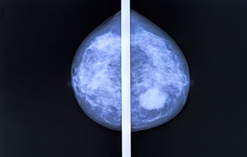 stock photo of mammography  - mammography breast scan X  - JPG
