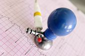 Ecg Electrode On Fragment Of Electrocardiogram