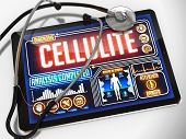 Cellulite on the Display of Medical Tablet.