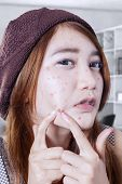stock photo of pimples  - Portrait of teenage girl use her finger to press pimple on her face at home - JPG