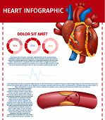Premium Quality Vector Illustration Of Realistic Heart And Atherosclerotic Vessel With Cholesterol P poster