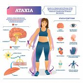 Ataxia Vector Illustration. Labeled Medical Movement Brain Disorder Scheme. Neurological Problem Wit poster