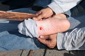 A construction worker shows a puncture wound in his foot after stepping on a nail on a construction site. Stepping on a nail hurts a lot and can cause nerve damage . time for a tetanus shot