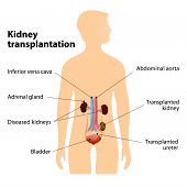 stock photo of human kidneys  - Kidney transplantation or renal transplantation - JPG
