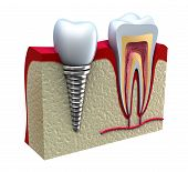 stock photo of jaw-bone  - Anatomy of healthy teeth and dental implant in jaw bone - JPG