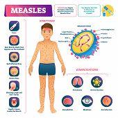 Measles Vector Illustration. Labeled Medical Virus Disease Medical Scheme. Anatomical Symptoms, Prev poster