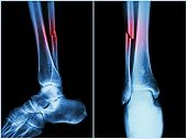 foto of joint inflammation  - Fracture shaft of fibula bone  - JPG