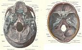 Dissection Of The Human Skull, Interior Views