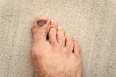 Nail Hematoma. Take Care Of Your Feet. Pedicure And Podiatry. Treatment Of Bruise And Fracture. Medi poster