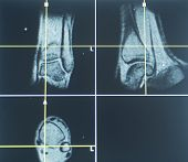 pic of mri  - Examination of X - JPG