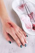Injured hand with blood on table in hospital