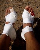 Injured feet