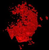Red Broken Heart: Disease Or Pain