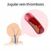 Jugular Vein Thrombosis. Blood Clot Blocks The Vessel. Medical Illustration. poster