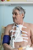 stock photo of pacemaker  - Senior man with pacemaker after heart surgery in a hospital ward - JPG