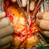Surgery. Coronary artery bypass grafting in operatoin room