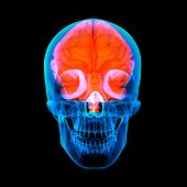 Human red brain X ray - front view