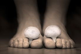 image of human toe  - Close view of a white mushrooms between the toes feet imitating toes fungus - JPG