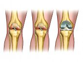 Healthy knee anatomy, degenerative arthritis of the knee and replacement surgery. Digital illustrati
