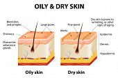 picture of section  - Oily  - JPG
