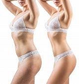 Woman Before And After Weight Loss. Body Slimming Concept. Isolated On White. poster