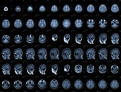 Brain and head MRI or CT images