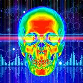 Thermal image of the human skull, blue technology background, lights, chemical formulas & digital wa