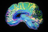 foto of magnetic resonance imaging  - Artificially Coloured MRI Scan Of Human Brain