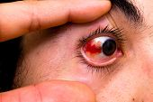 stock photo of hemorrhage  - Subconjunctival Hemorrhage - JPG