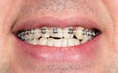 pic of crooked teeth  - Close - JPG