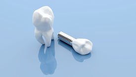 picture of dental impression  - Dental implant and teeth isolated on blue medical background - JPG