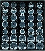 magnetic resonance scan of brain and cranium