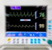 blurred medical monitor in ICU
