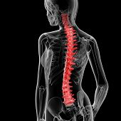 stock photo of herniated disc  - 3d rendered illustration of the female spine bone  - JPG