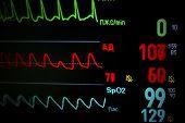 Screen Medical Monitor In Dynamic.