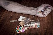 stock photo of bruises  - Bruised hand with needle and pills on the table - JPG