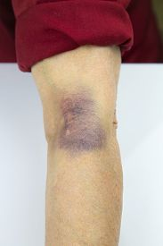 picture of bruises  - Large Bruise on human arm - JPG