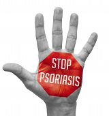 Stop Psoriasis Concept on Open Hand.