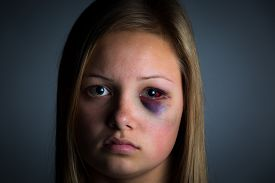 picture of bruises  - Child abuse victim with heavy bruising and black eye - JPG