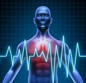 stock photo of ekg  - Heart and coronary disease representing the medical concept of cardiac problems stemming from human blood circulation with the heart and arteries represented by a man with a ekg monitor symbol - JPG