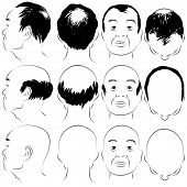 picture of hairline  - An image of a asian male pattern baldness set - JPG