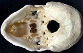 skullbase