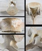 Five different views of a Gray Whale (Eschrichtius robustus) vertebrae on a white wood surface.