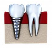 picture of jaw-bone  - Dental implant  - JPG