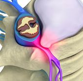 stock photo of herniated disc  - Prolapse of intervertebral disc closeup 3d image - JPG