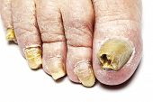 stock photo of ringworm  - Fungus Infection on Nails of Man - JPG