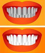 Care Of Teeth